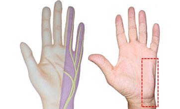 Hand mit Loge-de-Guyon-Syndrom