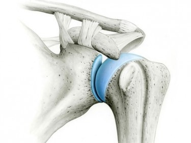 Luxation de l'épaule – la dislocation de l'épaule