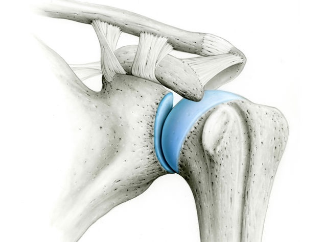 Schulterluxation – die Verrenkung der Schulter » Hirslanden Blog