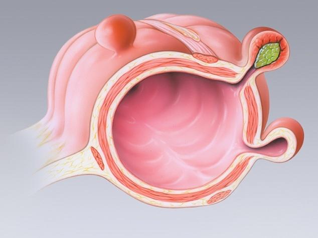 Divertikel – wenn Ausstülpungen von Organen Ärger machen ...