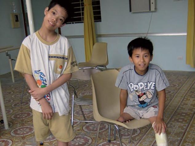 2 Jungen mit Beinprothesen