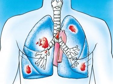 «Les fumeurs rejettent l'idée du cancer du poumon – jusqu'à ce qu'il soit trop tard»