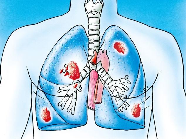 Lungenkrebstumoren