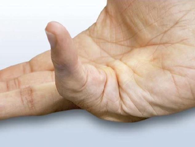 Morbus Dupuytren: Wenn Sie plötzlich Ihre Finger nicht