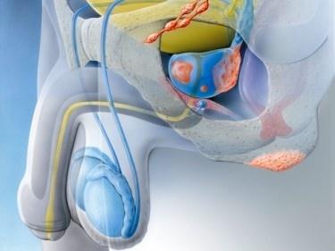 Vorsorge beim Prostatakrebs