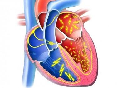 Vorhofflimmern (2 von 2) - den gesunden Herzrhythmus wiederherstellen