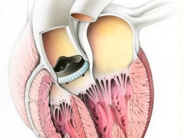 Moderne Herzchirurgie: Optimale Resultate und schnellere Erholung