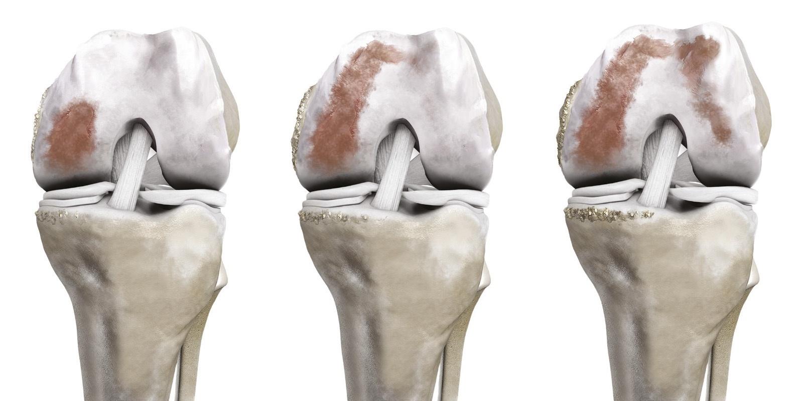 Kniearthrose in 1, 2 oder 3 Kompartimenten
