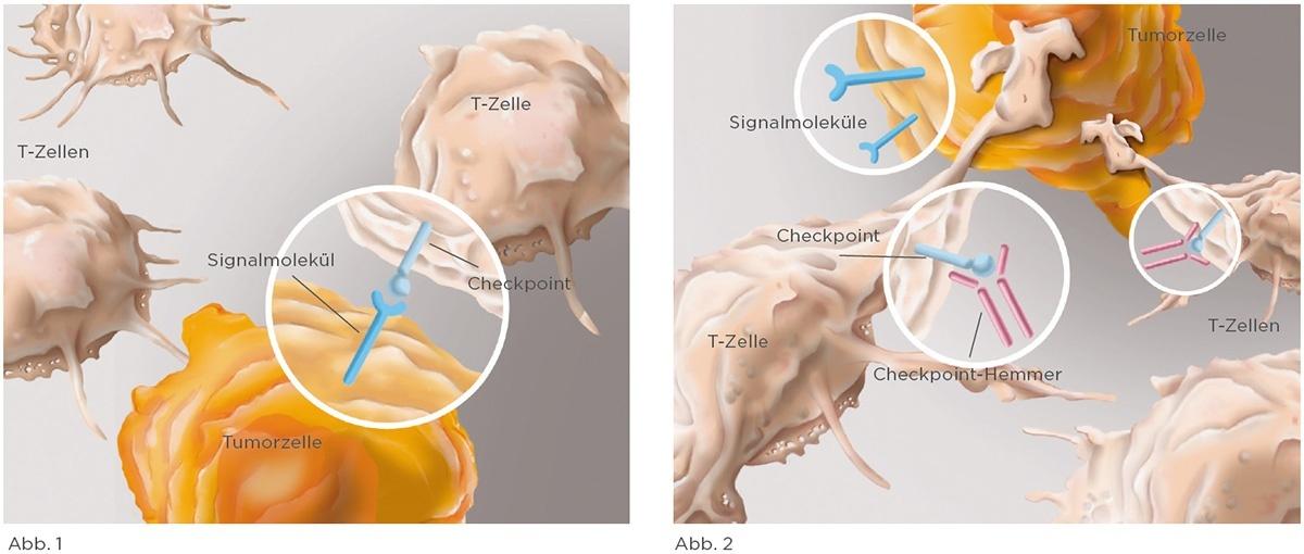 Immuntherapie gegen Krebszellen
