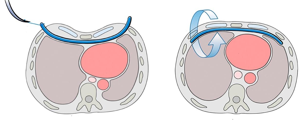 minimalinvasive Behandlung einer Trichterbrust