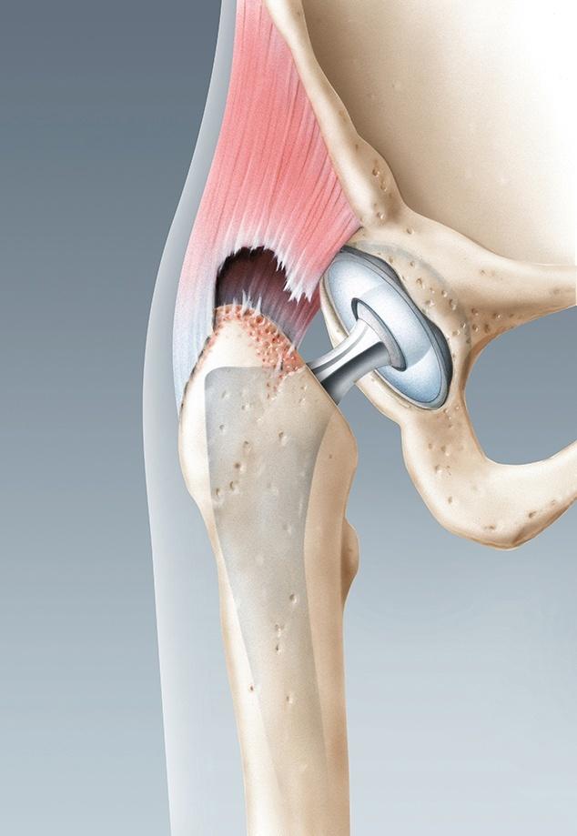 Partieller Abriss der Sehne des Hüftmuskels