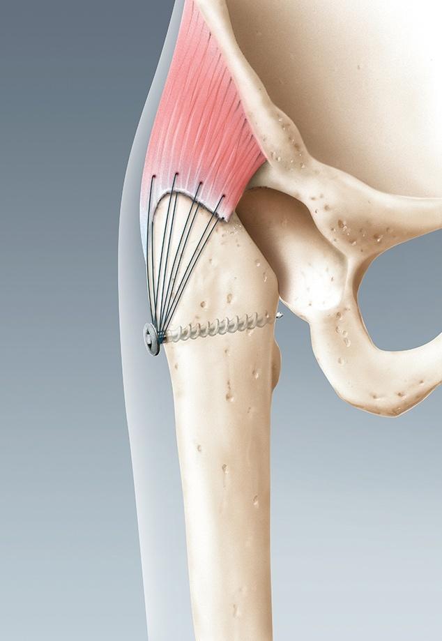 Hüftgelenk mit entferner Hüftprothese