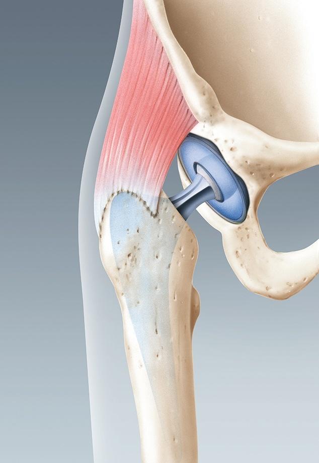 neu eingesetzte Hüftprothese