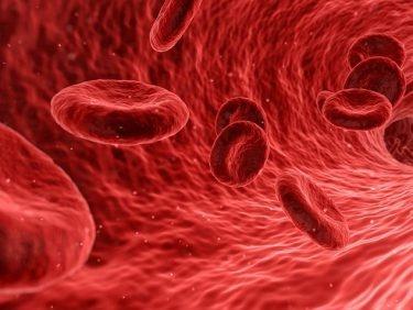 Autohémothérapie en cas de douleurs et d'arthrose dans le genou
