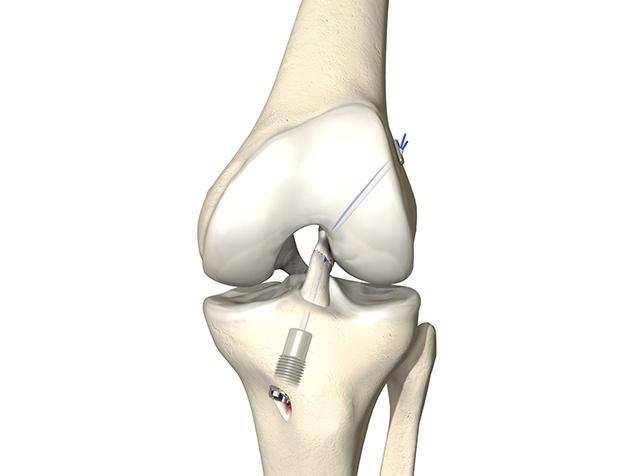 Kreuzbandriss mit Ligamys-Implantat