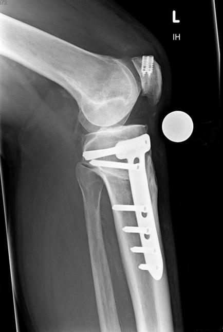 Kontrollröntgen nach Umstellungsosteotomie Knie gebogen