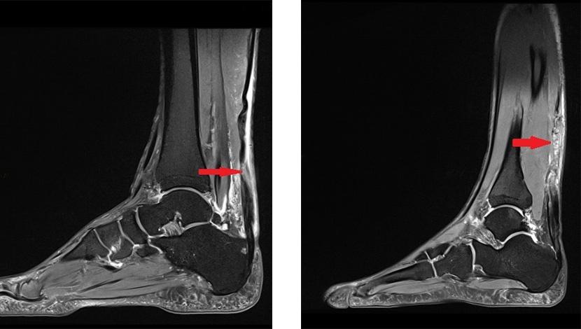 2 MRI-Aufnahmen von gerissenen Achillesssehnen
