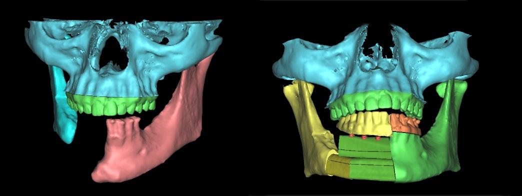 Planungsmodell Behandlung Mundhöhlenkrebs