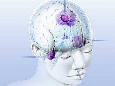 «Les symptômes des tumeurs au cerveau sont généralement peu spécifiques»