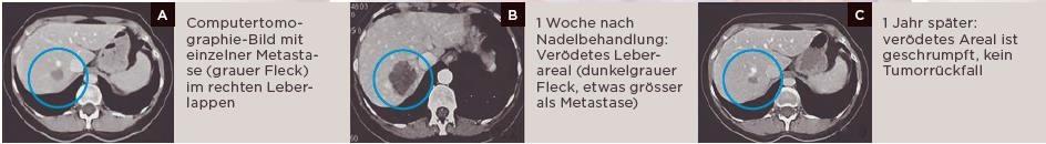 Verödung von Lebermetastasen