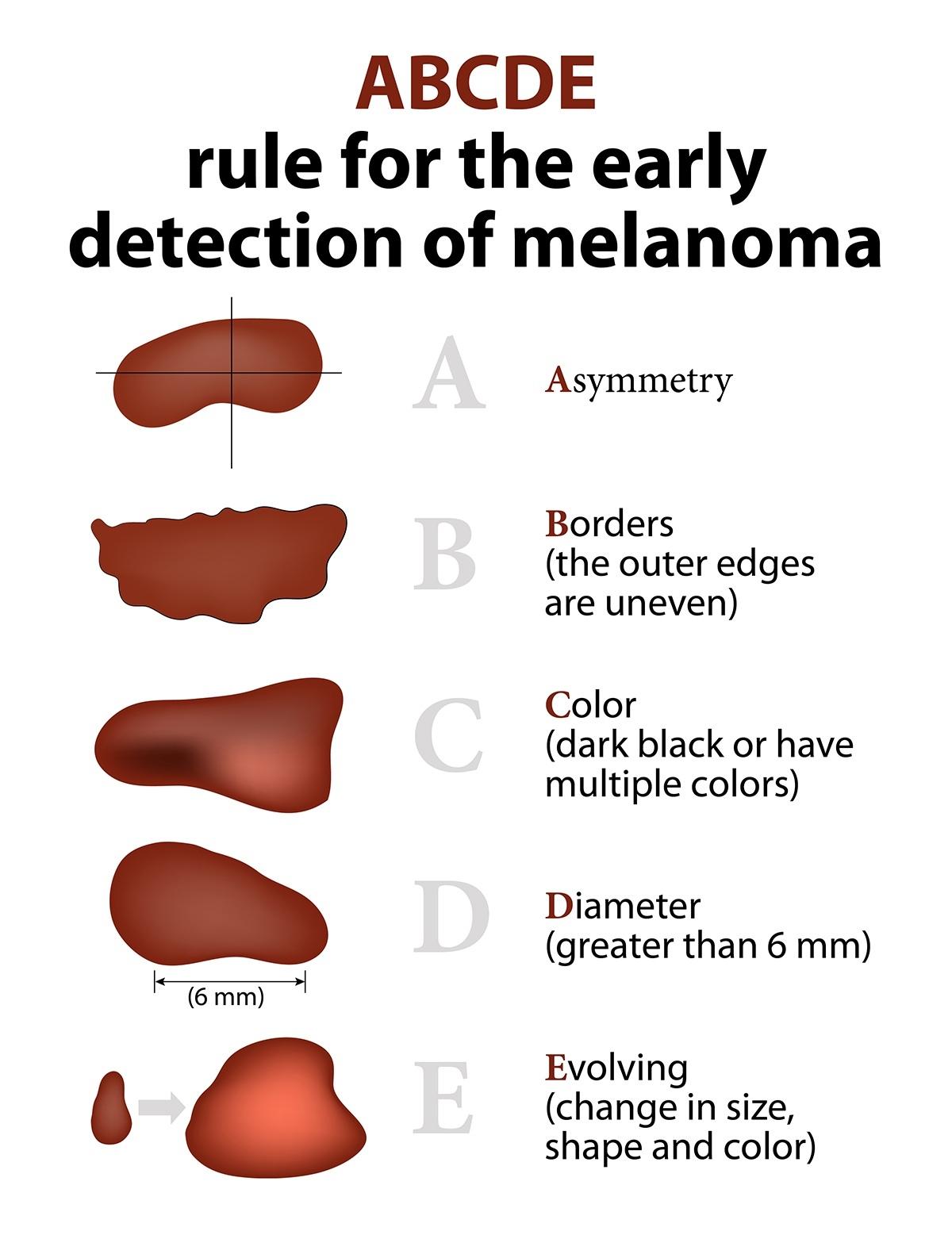 méthode ABCDE pour reconnaître des mélanomes