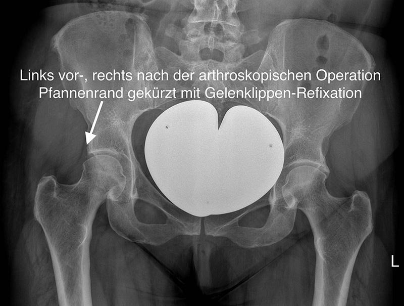 Röntgenbild Hüftimpigment nach Operation