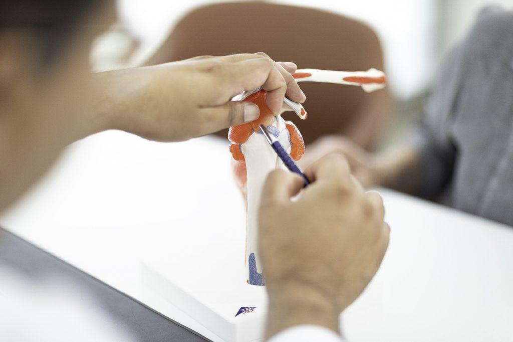 Arzt zeigt Patientin an Modell Behandlung bei Rotatorenmanschettenruptur