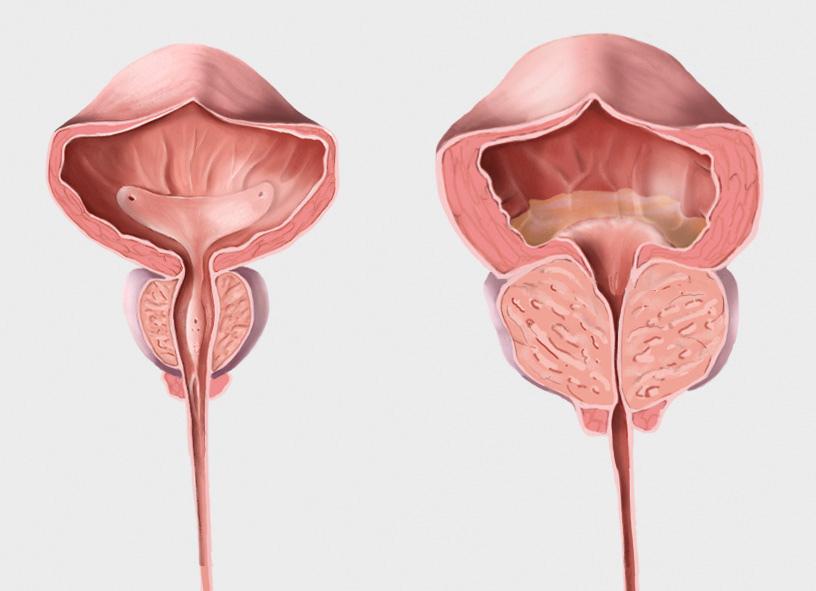 Prostata normal und vergrössert