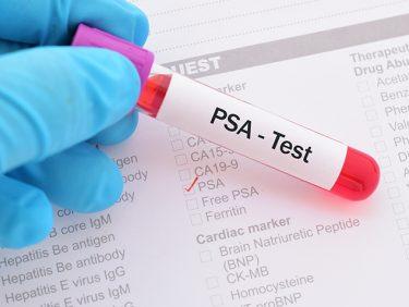 Tout savoir sur le dépistage du cancer de la prostate