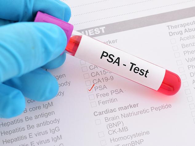 Test PSA pour dépistage du cancer de la prostate