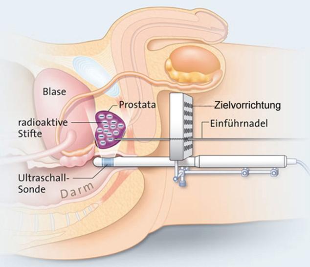 Zielvorrichtung für Brachytherapie in der Prostata