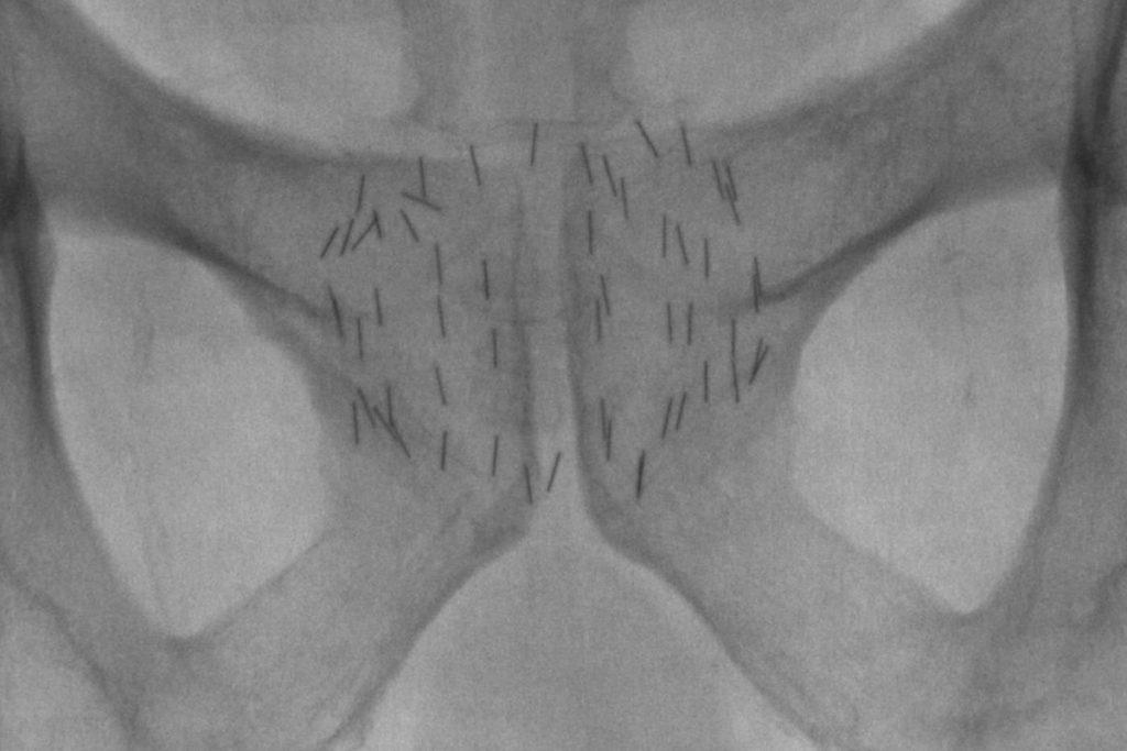 Röntgenbild Prostata nach OP Brachytherapie