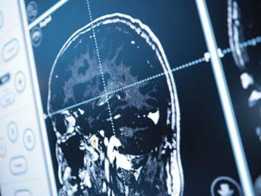 «Quand une tumeur au cerveau change notre être»
