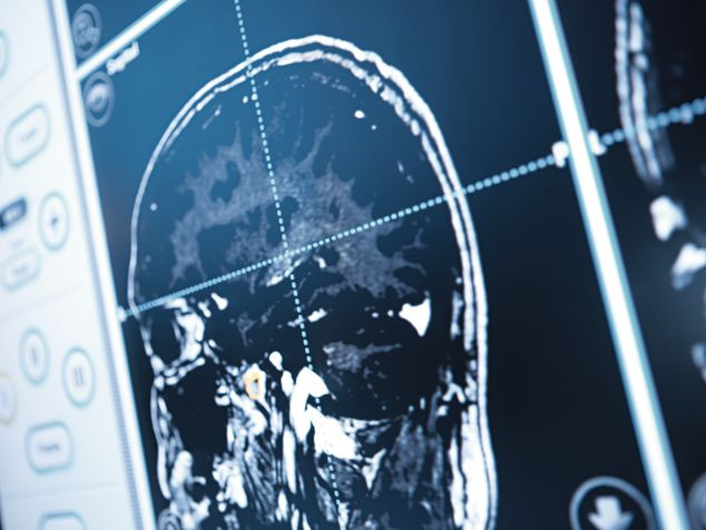 Röntgenbild Hirn