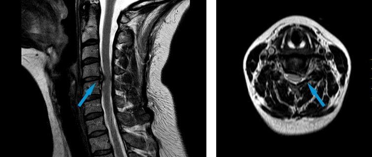 Röntgenbild Bandscheibenvorfall an der Halswirbelsäule