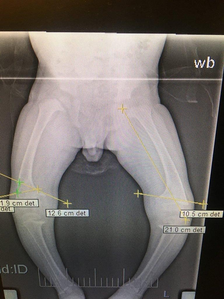 Röntgenbild deformierte Beine