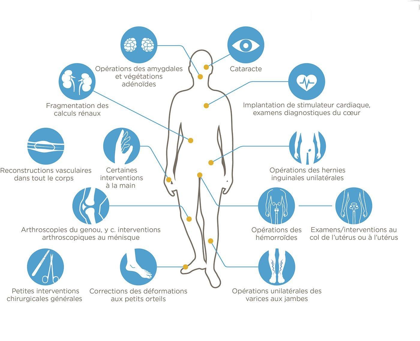 interventions réalisées en ambulatoire