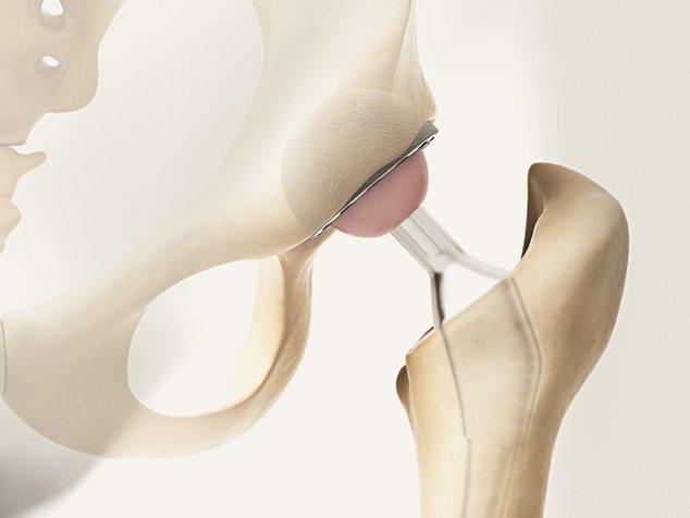 Hüftprothese