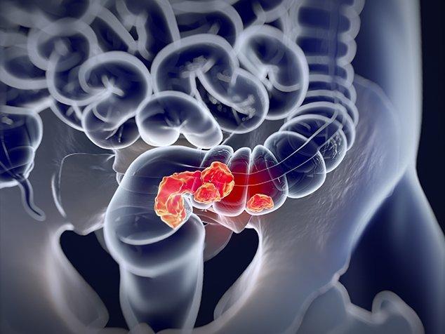 Darmkrebs, Symptome, Behandlung, Dickdarmkrebs