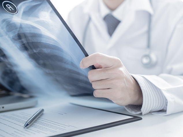 So wichtig ist die Radiologie bei Atemnot
