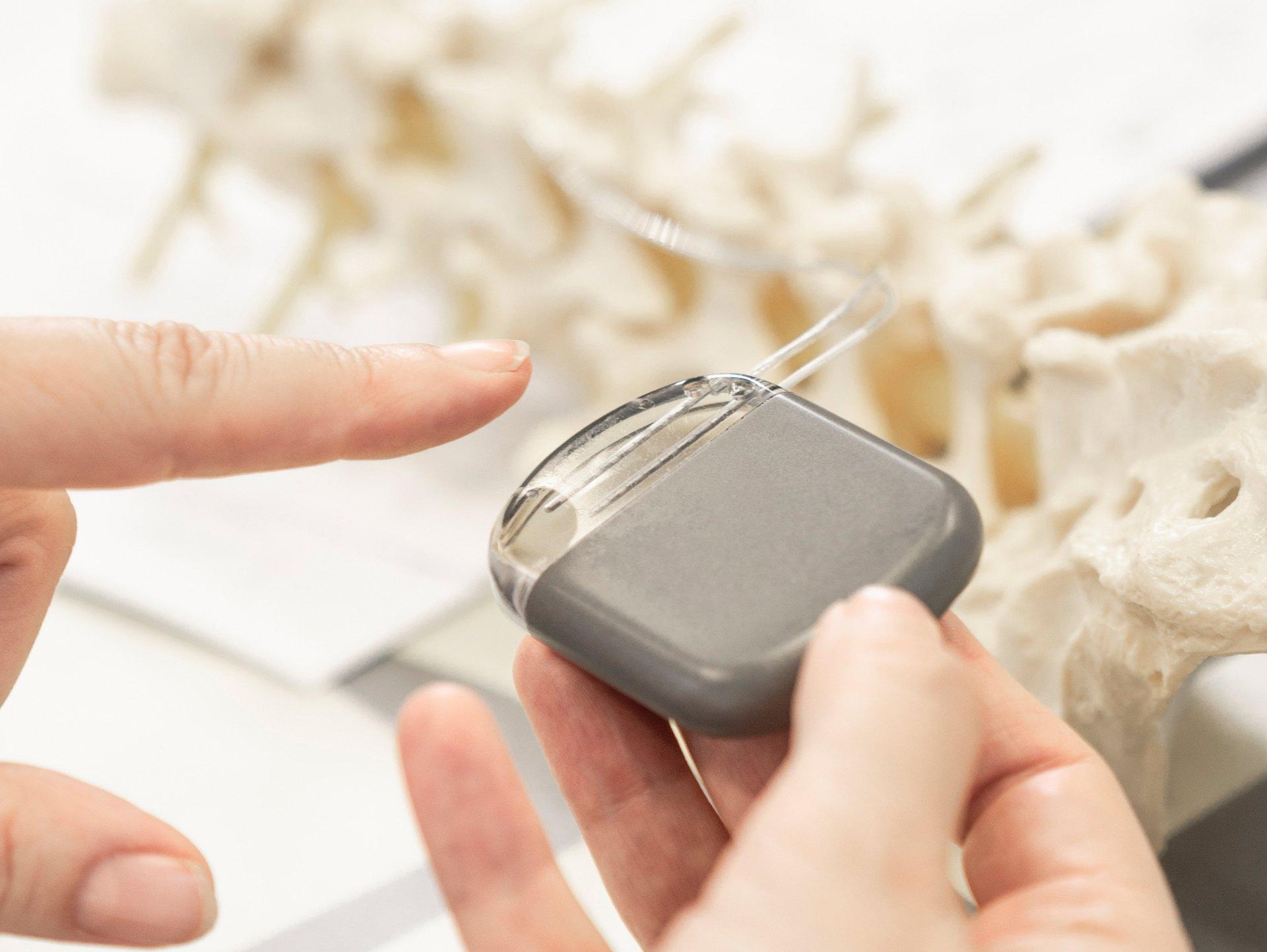 «Douleurs chroniques: la neurostimulation peut sensiblement améliorer la qualité de vie»
