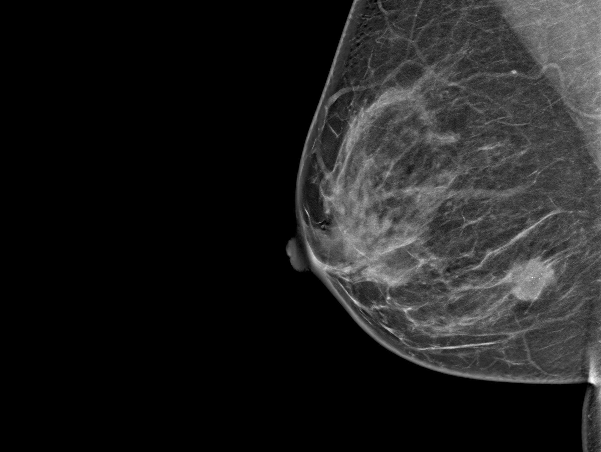 Brustkrebs, Brust, Tumor